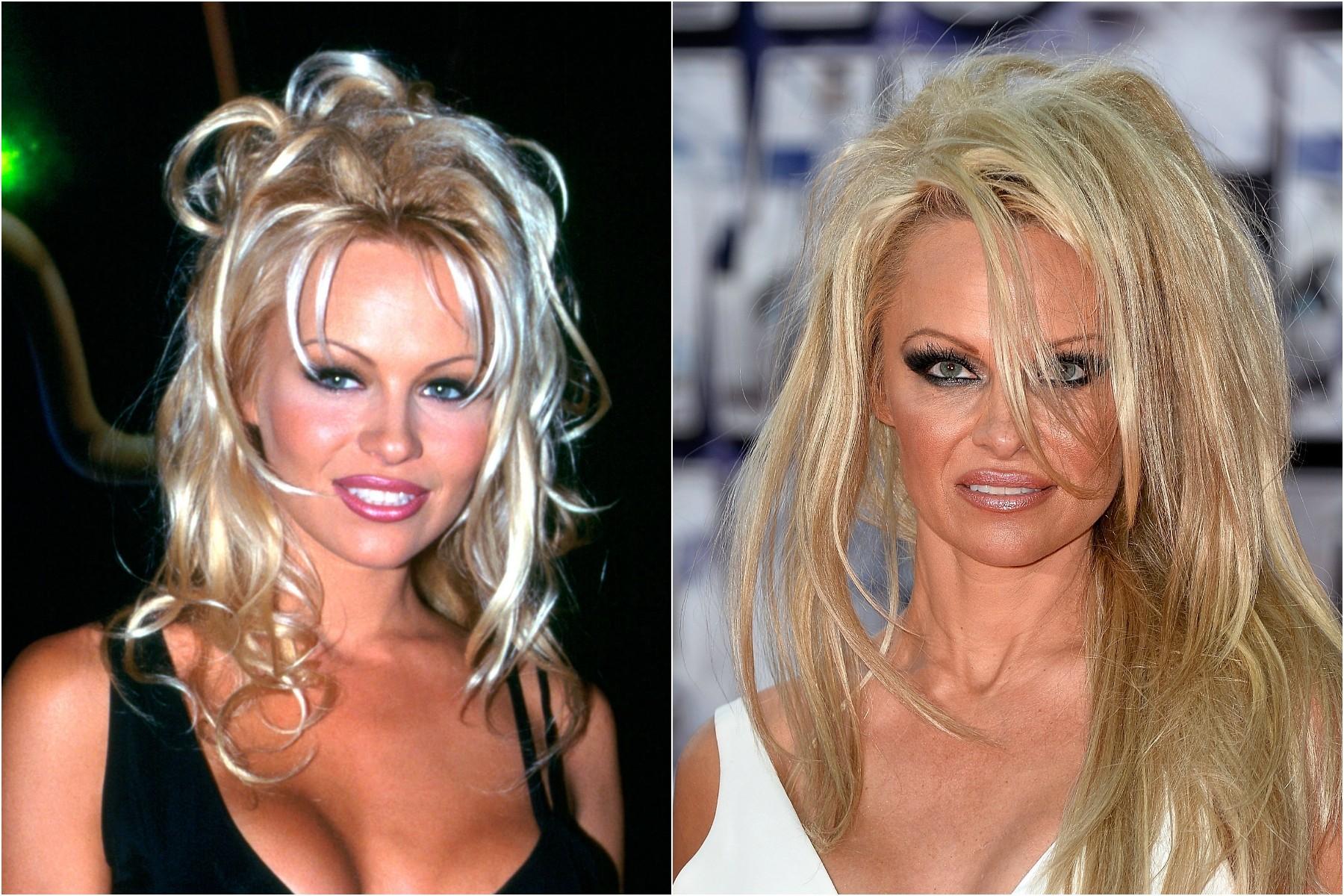 Pamela Anderson em 1994 e em 2014. (Foto: Getty Images)
