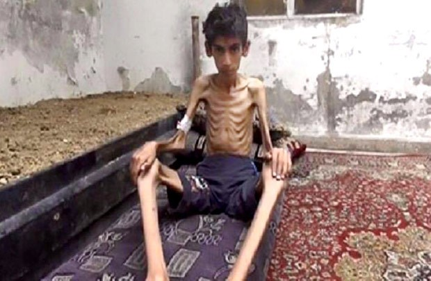 Imagem chocante mostra jovem desnutrido por falta de alimentos em Madaya, na Síria (Foto: Local Revolutionary Council in Madaya/AP)