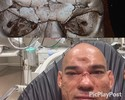 """Cyborg deixa hospital e diz que está bem: """"Só quebrou a casca do ovo"""""""