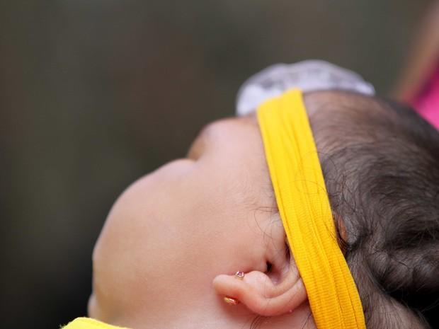 Bebê com microcefalia (Foto: Aldo Carneiro/Pernambuco Press)