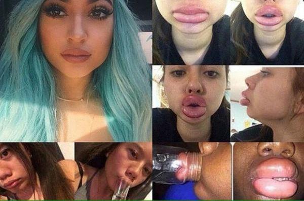 Kylie Jenner faz alerta após polêmica para aumentar volume dos lábios em rede social (Foto: Reprodução do Twitter)