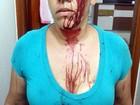 Homem corta rosto de ex-mulher com garrafa de vidro em Santa Bárbara