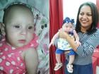 Mãe busca ajuda para evitar cegueira de bebê adotada com microcefalia