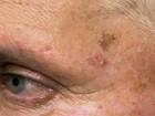 Pessoas claras com mais de 40 anos têm mais risco de câncer de pele