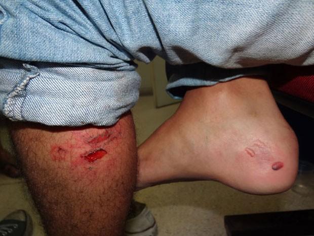 Estudante Luan Melo mostra ferimentos na perna, provocados por balas de borracha (Foto: Luna Markman / G1)
