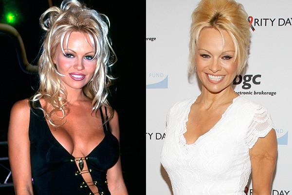 Fazem duas décadas desde que Pamela Anderson brilhou em 'Baywatch', mas a artista ainda faz o possível para manter o corpão. Ao longo dos anos ela fez várias plásticas para aumentar os seios. (Foto: Getty Images)