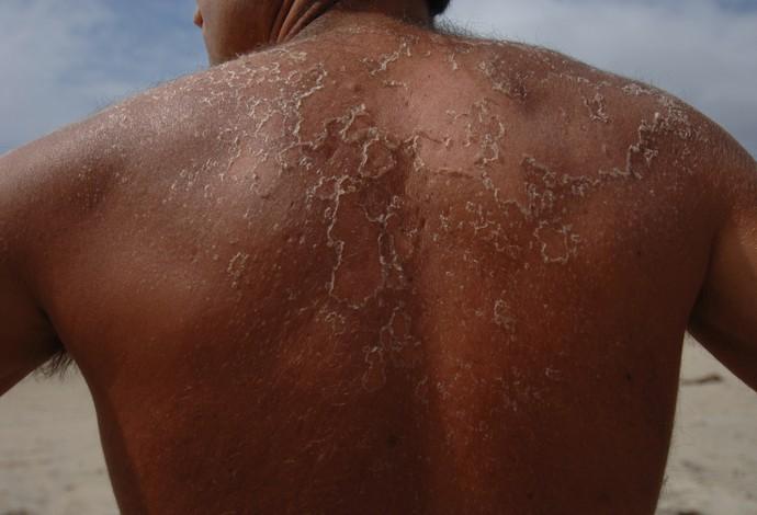 eu atleta descamando (Foto: Getty Images)