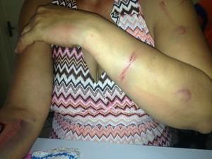 Depiladora teve ferimentos nos braços, olho direito e nas pernas (Foto: Nadyenka Castro/G1 MS)