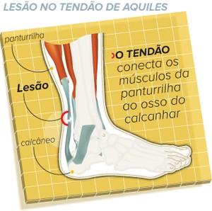 euatleta lesoes tendao de aquiles (Foto: eu atleta)