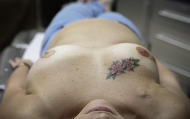 Aumento de Irkutsk em uma cirurgia plástica de peito
