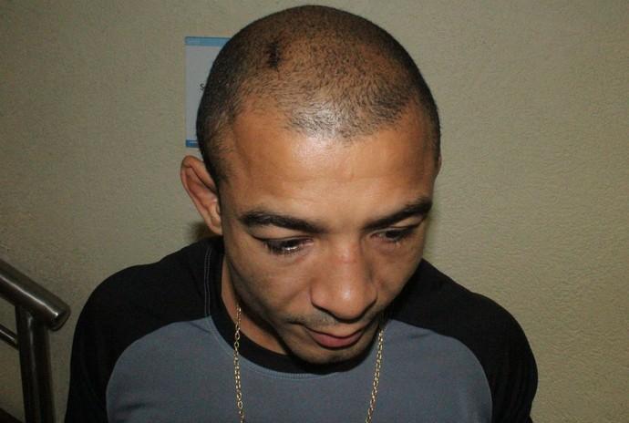 José Aldo mostra a cabeça costurada por cinco pontos (Foto: Marcelo Barone)