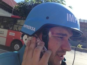 Assistente de câmera do SBT também ficou ferido por estilhaços de bomba em protesto (Foto: Darlan Alvarenga/G1)