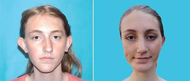 Nadia Ilse, antes e depois da cirurgia. (Foto: Little Baby Face Foundation / BBC)