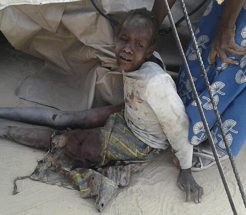 Criança ferida por bombardeio em Rann, na Nigéria, aparece chorando em imagem do Médico Sem Fronteiras (Foto: HANDOUT / MÉDECINS SANS FRONTIÈRES (MSF) / AFP)