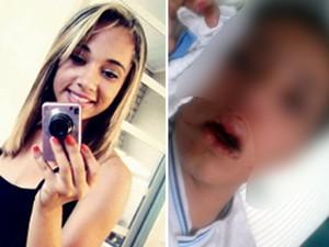 Meninda de 13 anos foi agredida em escola de Sorocaba (Foto: Reprodução Facebook/Arquivo pessoal)