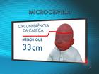 Sergipe apresenta dados alarmantes de bebês com microcefalia