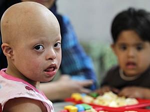 Síndrome de Down (Foto: Reuters)