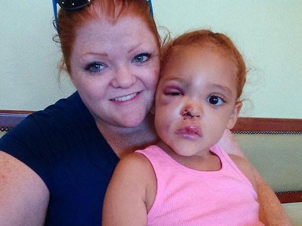 A mãe Lacey Harris com a filha AvaLynn depois do incidente (Foto: Reprodução/Facebook/Lacey Harris)