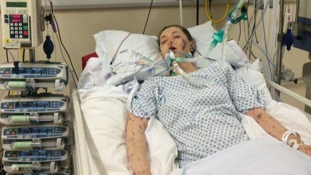 Charlene diz se sentir sortuda por ter sobrevivido à doença (Foto: Charlene Colechin)