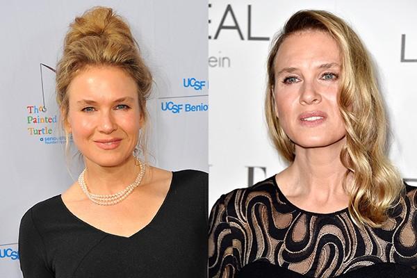 Acredite se quiser: as duas fotos acima foram tiradas com poucos meses de diferença entre elas. Renée Zellweger surpreendeu a todos com sua nova aparência que, segundo boatos, é o resultado de vários procedimentos estéticos. (Foto: Getty Images)