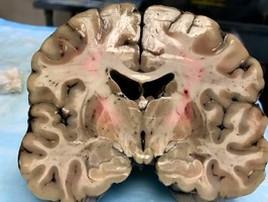 Cérebro de atleta de 27 anos faz revelações da 'doença de boxeador' (Boston University)