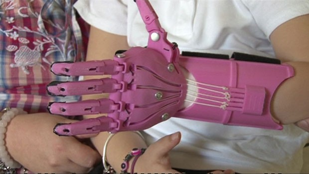Médicos chegaram a sugerir uma cirurgia que retiraria um dedo do pé para ser usado na mão - mas os país acharam que ela ainda era muito pequena para esse tipo de procedimento. (Foto: BBC)