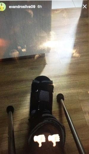 Evandro, lesão, Coritiba (Foto: Reprodução/Instagram)