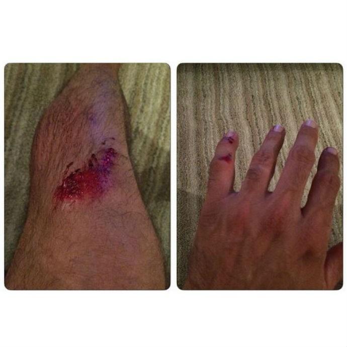 Giovane Gavio exibe feridas nas redes sociais (Foto: Reprodução/Instagram)