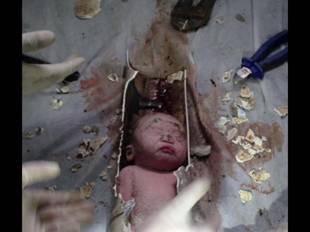 Bebê encontrado em tubulação de esgoto do vaso sanitário dum prédio residencial no leste da China é retirado com vida. Moradores ouviram o choro da criança no banheiro do 4º andar e chamaram os bombeiros. O bebê abandonado ainda estava ligado à placenta. (Foto: AFP)