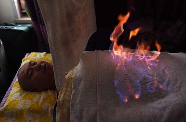 Homem passa por demonstração de fogoterapia em apartamento de Pequim, na China, onde tratamento alternativo tem feito sucesso (Foto: Greg Baker/AFP)