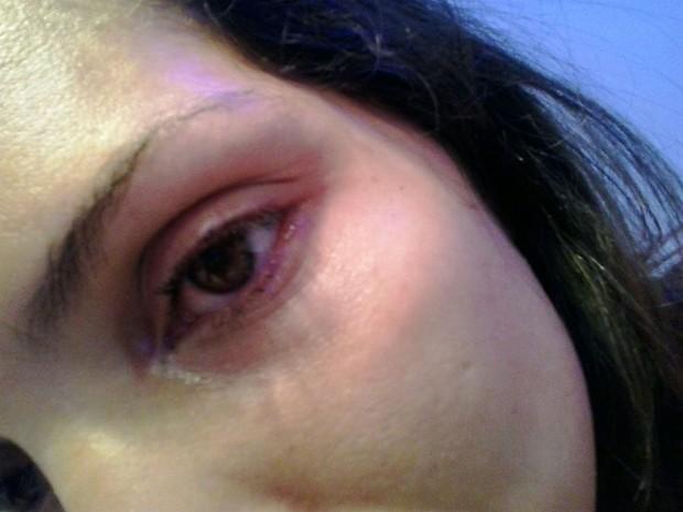 Lucilene fotografou olho inchado após briga (Foto: Arquivo Pessoal)