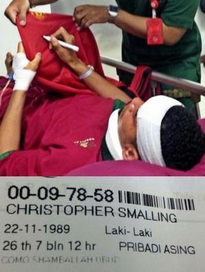 BLOG: Após desmaio, Smalling é internado em hospital de Bali