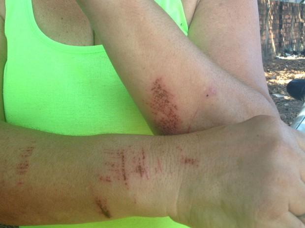 Idosa mostra marcas de agressão após reagir a assalto  (Foto: Jéssica Alves/G1)
