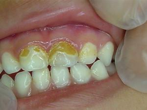 Nanopartículas de prata deixam dente amarelado no início, mas depois eles voltam a ficar brancos (Foto: Divulgação / Cetene)