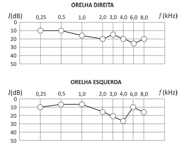 Gráfico com níveis de audição (Foto: Reprodução/Fuvest)
