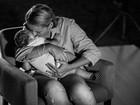 Dos 31 casos de microcefalia em MT, 4 foram provocados pelo vírus da zika