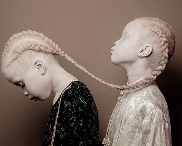 As gêmeas têm chamado atenção na moda (Foto: Vinicius Terranova)