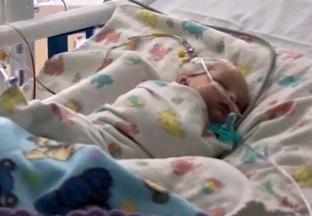 Recém-nascido que foi tratado com supercola cirúrgica em hospital (Foto: Divulgação/Hospital da Universidade do Kansas)