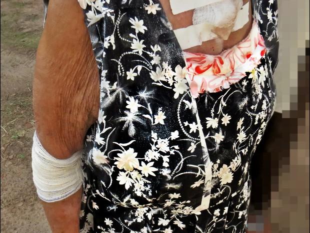 A idosa de 73 anos que mora em Colinas ficou ferida em diversas partes do corpo (Foto: Almino Borges/PM-TO)