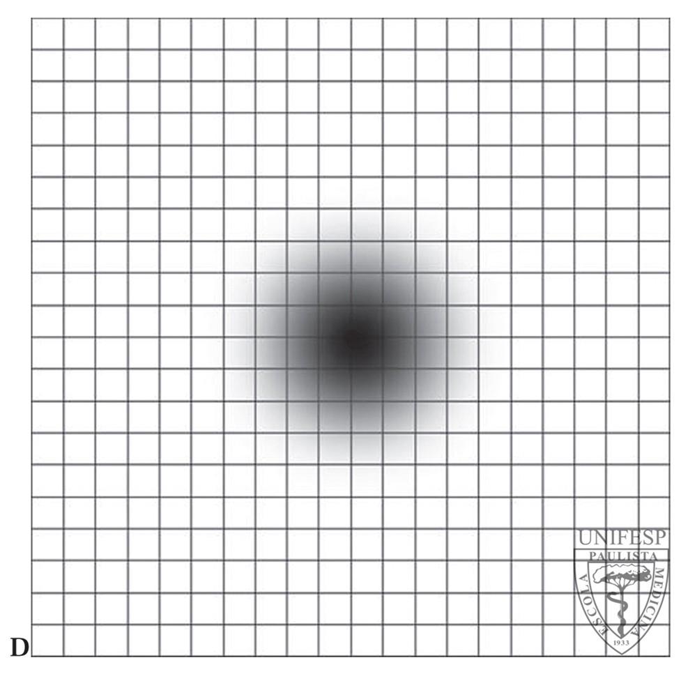 9757561e4 Autoexame ajuda a detectar alterações de visão | Blog Longevidade ...