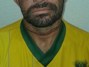 Homem é torturado e enterrado vivo no Ceará e sai de cova sozinho.