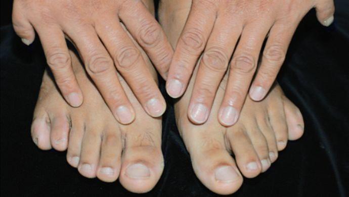 Pés seis dedos euatleta polidactilia (Foto: Arquivo Pessoal)