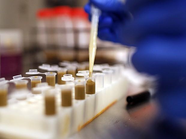 Thomas Louie prepara frascos para produzir comprimidos com bactérias de fezes em seu laboratório em Calgary, Alberta, no Canadá, no dia 26 de setembro (Foto: The Canadian Press, Jeff McIntosh/AP)