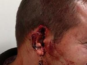 Carcereiro que teve pedação da orelha arrancada (Foto: Reprodução/Facebook)