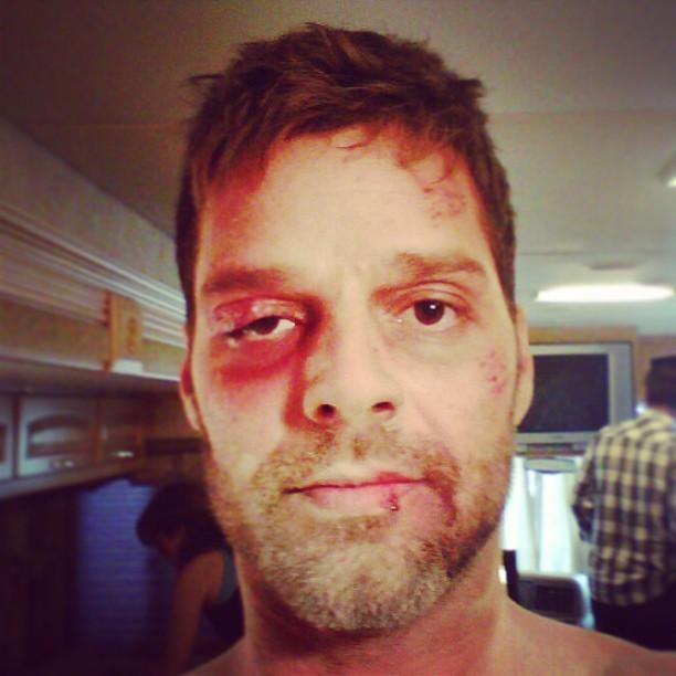 Ricky Martin assusta f  227 s com foto de  machucados Ricky Martin 2013 Boyfriend