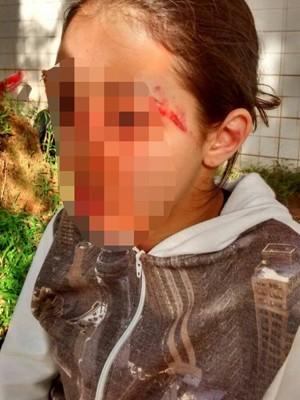 Jovem foi agredida dentro de escola estadual em Praia Grande (Foto: Arquivo Pessoal)
