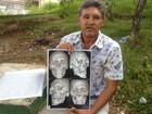 Homem com fraturas na face corre risco de cegueira por falta de cirurgia