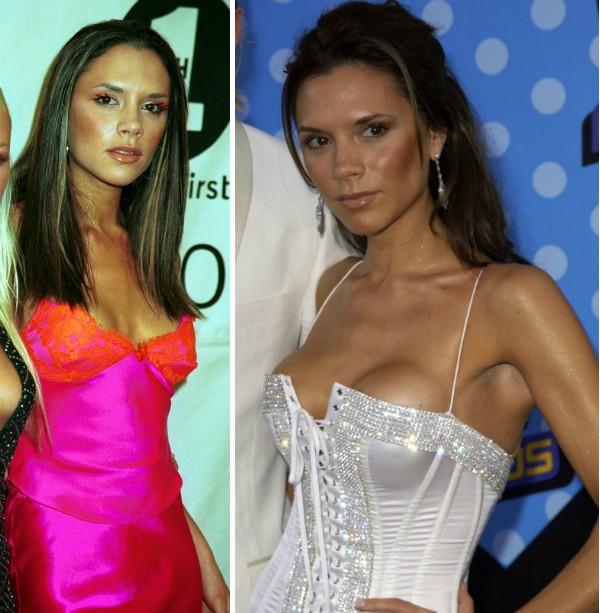 Victoria Beckham antes e depois de colocar silicone (Foto: Getty Images)