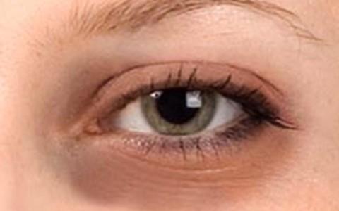 Saiba como disfarçar olheiras azuladas
