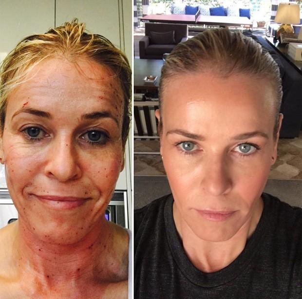 Chelsea Handler mostra resultado de tratamento estético a laser (Foto: Reprodução/Instagram)